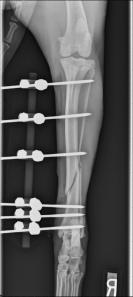 A linear external fixator used to stabilize a tibial fracture.