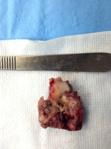 This was the piece of rawhide that was lodged in Tido's esophagus. It was nearly 5cm in length!!